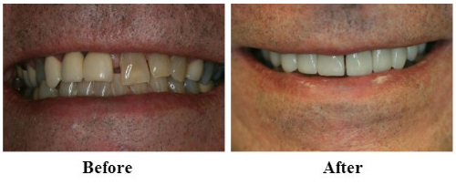 Implant and Crowns