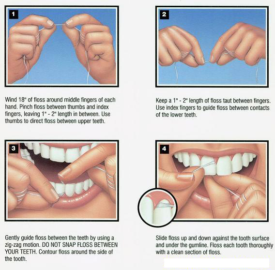 Brushing and flossing recommended techniques door county flossing diagram brought to you by your door county dentists and algoma dentists at dentistry by ccuart Gallery