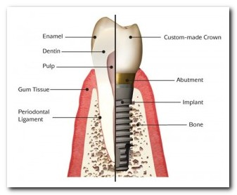 Dentistry by Design offers Dental Implants in Sturgeon Bay, Sister Bay and Algoma and shares this graphic about tooth implants